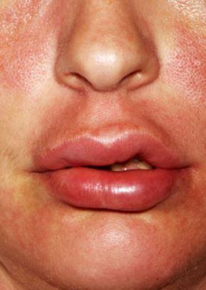 reaccion alergica acido hialuronico