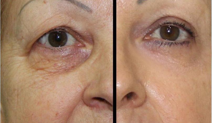 lifting facial sin cirugía en los ojos