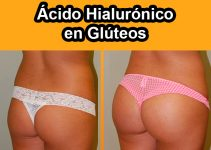 antes y después del ácido hialurónico en glúteos