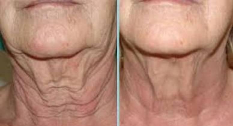 aplicar hilos tensores en el cuello