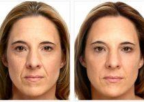 diferente rostro trás aplicar hilos tensores