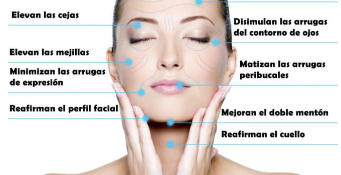 hilos tensores en rostro