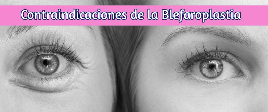 Contraindicaciones sobre la Blefaroplastia