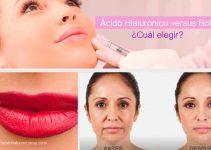 diferencia entre botox uy acido hialuronico