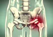 lesion de cadera