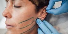 hilos tensores en la cara